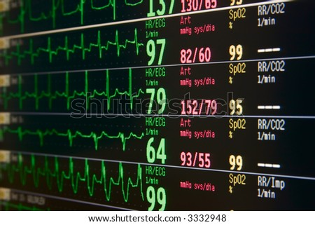 intensive care unit lcd monitor for several patients