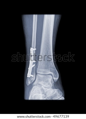 internal fixation of a broken leg with plate and screws