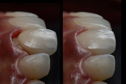 Intra oral try in step or mock up before permanent bonding and installation of dental all ceramic single crown. lateral view with black background. Before and after.