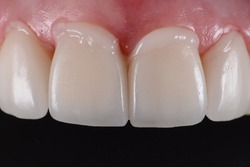 Intra oral try in step or mock up before permanent bonding and installation of dental ceramic veneers.