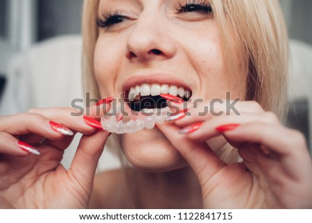 Invisible braces aligner, woman smiling #1122841715