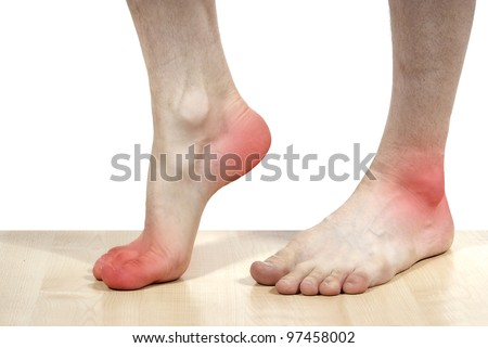 isolated disease of the heels - stock photo