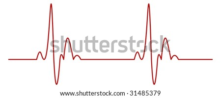 Isolated Heartbeat Graph