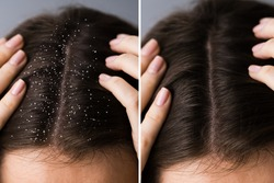 Itchy Head Scalp And Dandruff Problem Before And After