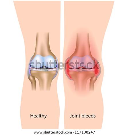 Joint bleeds in hemophilia