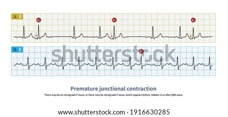 Junctional premature contractions come from the atrioventricular junction. They can have only retrograde P wave, only QRS wave, or both. Stock fotó ©