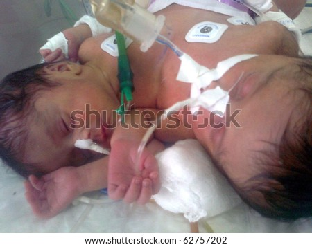 KARACHI, PAKISTAN - OCT 08: Conjoined twins, who came from Larkana, are being treated at surgical unit at National Institute for Child Health (NICH) on October 08, 2010 in Karachi, Pakistan