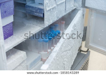 Keep isolated pathogen in ultra low temperature in the Laboratory freezer. Stockfoto ©