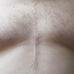Kelloid scar on the man's body close-up. Operated heart defect.
