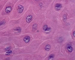 Keratinocytes of the stratum spinosum surrounded by numerous spiny structures. At the top edge of the image, keratohyalin granules start to appear
