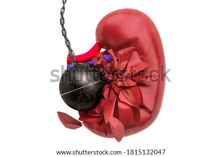 Kidney destroying by wrecking ball. Pain in kidneys, chronic kidney disease concept. 3D rendering isolated on white background Сток-фото ©