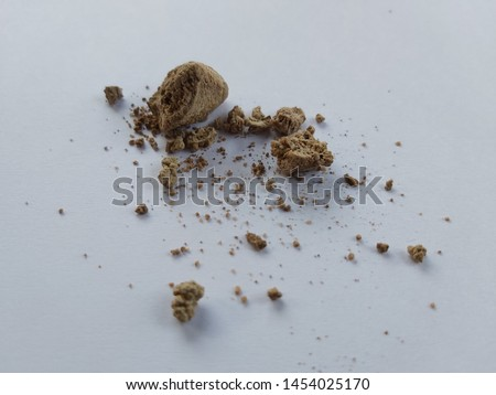 kidney stone after surgery on the right abdominal cause of urolithiasis and renal calculus on isolated white background.