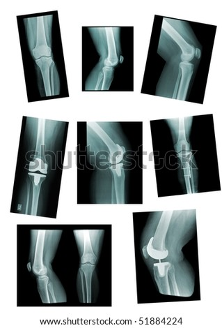 knee collection: x-ray of knee joint, replacement, different views
