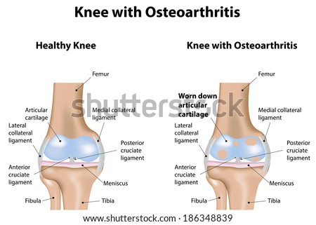 Knee Joint with Osteoarthritis Arthritis Diagram