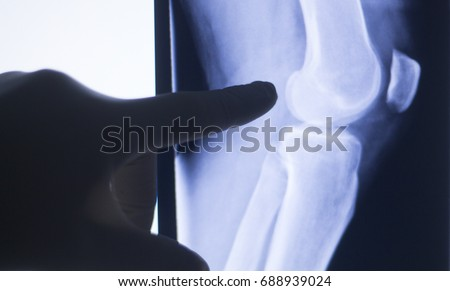 Knee joint xray test scan results of  patient with arthritis and joints pain in knees on screen with surgeon.