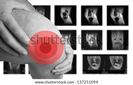Knee Problems and MRI images / Knee Problems