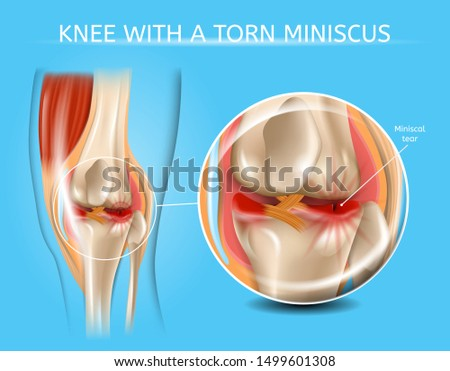 Knee with Torn Meniscus Realistic Medical Scheme with Damaged Knee Joint and Magnified Painful Meniscus Tear Anatomical Illustration. Musculoskeletal System and Joints Injuries, Meniscus Trauma