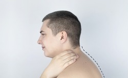 Kyphosis. The man suffers from a curvature of the spine in the upper section. The cervical vertebrae bulge out and form a hump. Curvature and incorrect posture treatment concept