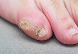 Large dry callus on the little toe of a man's foot. Consequences of wearing uncomfortable, tight shoes.