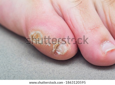 Large dry callus on the little toe of a man's foot. Consequences of wearing uncomfortable, tight shoes. Stockfoto ©