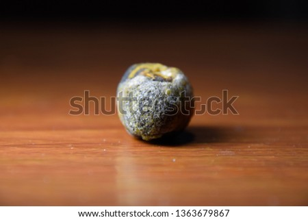 Large gallstone, Gall bladder stone. The result of gallstones. A calculus of heterogeneous composition on a brown background