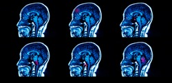 Large photo of multiple picture of sagittal magnetic resonance imaging of human brain level of corpus callosum with red highlight at brain stem, frontal lobe, cerebellum. Blue tone dark background.