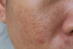 Large pore and blemish asian skin
