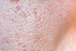 large pores, close up has skin problem, oily skin, whitehead and blackhead pimple from not take care for a long time.
