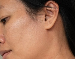 Large pores skin texture from an Asian woman face, imperfect skin concept