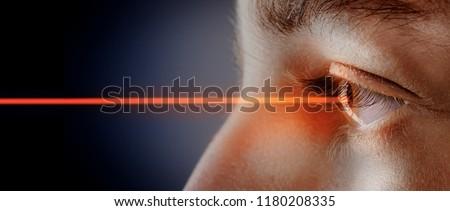 laser beam  in the eye   ストックフォト ©