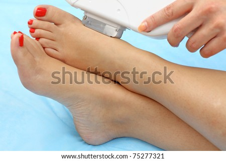 Laser hair removal on lady's legs. Intentional shallow depth of field.