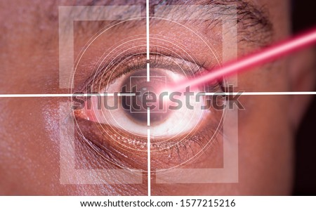 laser or lasik eye surgery concept, l laser beam shining into african america male dark brown eyes Stock fotó ©