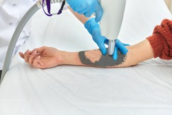laser tattoo removal on woman's arm