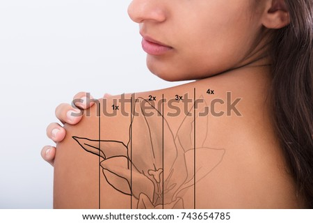 Laser Tattoo Removal On Woman's Shoulder Against White Background #743654785