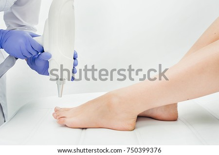 Laser treatment of nail fungus