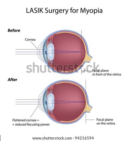 Lasik eye surgery for myopia