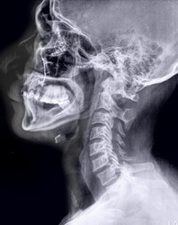 lateral x-ray of head and neck bones