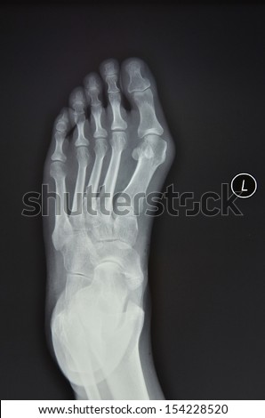 Left foot X-ray, positive - stock photo