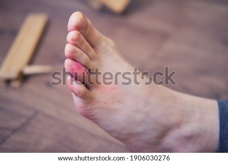 Leg injured from falling from a broken chair, red sore finger. The problem with labor protection at diy work at home Foto stock ©