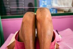 Leg Length Discrepancy (LLD), deforomity tibia and femur bone