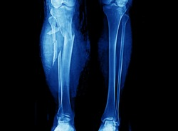 Leg X-ray showing severe open comminuted fracture of proximal tibia and fibula. The patient also has compartment syndrome. The patient needs emergent fasciotomy and external fixation.