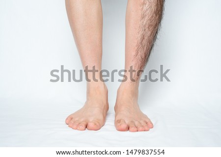 Legs hair removal for men, before and after. Apply to half of leg and one leg. #1479837554