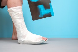 Legs of a man with a broken leg on a blue background. X-ray image of ankle fracture , broken ankle , pott fracture fix by open surgery and metal plate and screw