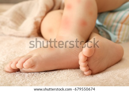 Legs of little child with red rash, closeup. Concept of babies allergies