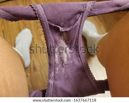 Photo of  Leukorrhea on underwear. Woman problems, vaginal discharge.