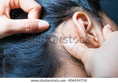 Lice on human hair