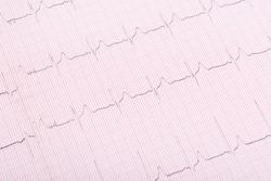 light heartbeat cardiogram background, close-up
