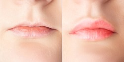 Lip augmentation before and after close up. Woman lips surgery, filler injection, mesotherapy, correction.