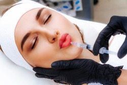 Lip augmentation procedure with hyaluronic acid. The beautician pierces the lips with a needle. Subcutaneous injection.