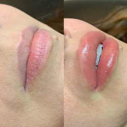 Lip blush tattoo treatment before and after